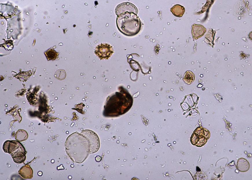 Pollenkörner